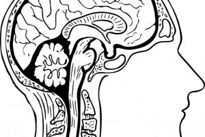 肺结核脑膜炎图片导致结核性脑膜炎的病因有哪些